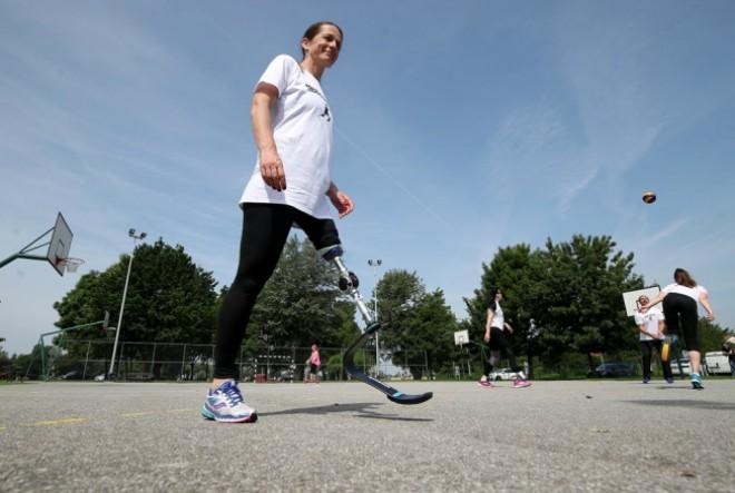 Prvih troje djece u Hrvatskoj koji će potrčati uz pomoć sportskih proteza